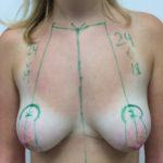 melebeck-sandrine-11-09-2015---seins-tubereux--1-
